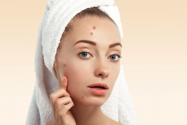 3 Effective Tips to Manage Your Acne