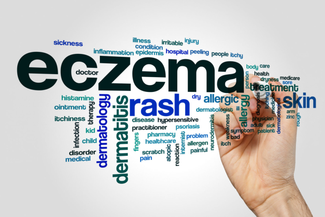 The Never-Ending Itchy Flares - Eczema Treatment